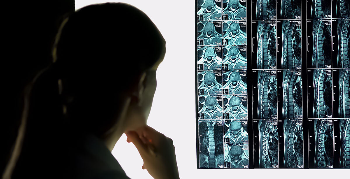 Slide Image of Hospital intern checking patients x-ray, spinal injury diagnostics and treatment